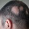 All about Alopecia Universalis