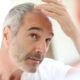 What To Expect During Your First Scalp Micropigmentation Session?
